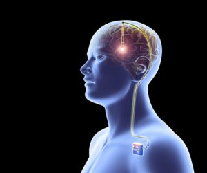 Neuroscience Technologies Capable of Tracking Human Mind to stop Brain Injury